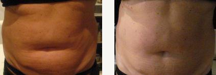 program nadmiar tkanki tłuszczowej