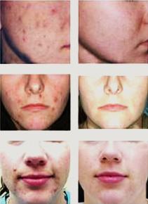 Zabieg na trudny oporny trądzik (Tough Acne Treatment)